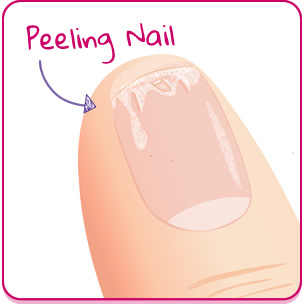 Problems with Peeling Nails